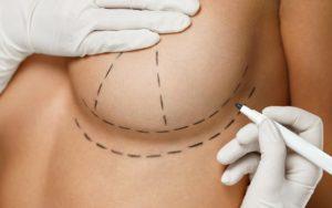mammoplastie d'augmentation