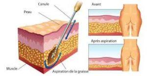 procédure de liposuccion