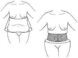 procédure abdominoplastie